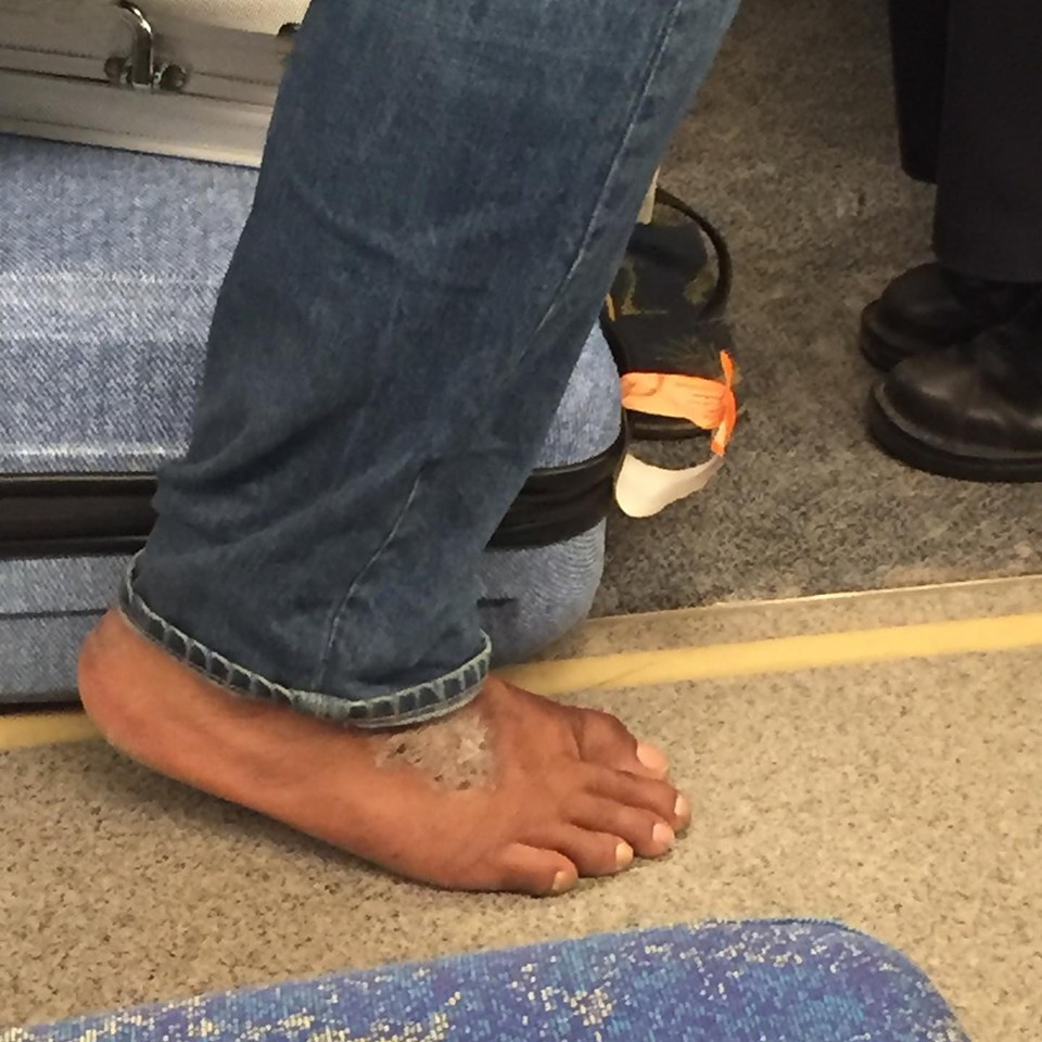 Toronto Go Train Man Disgust