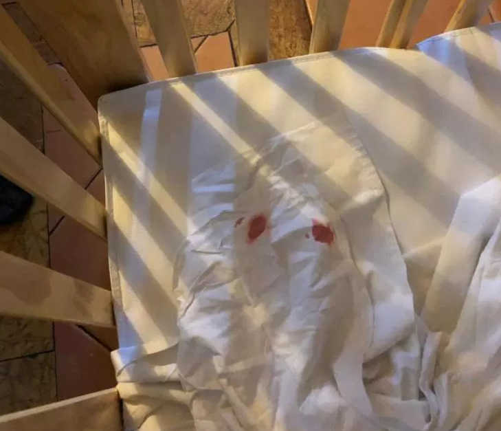 Stained hotel sheets