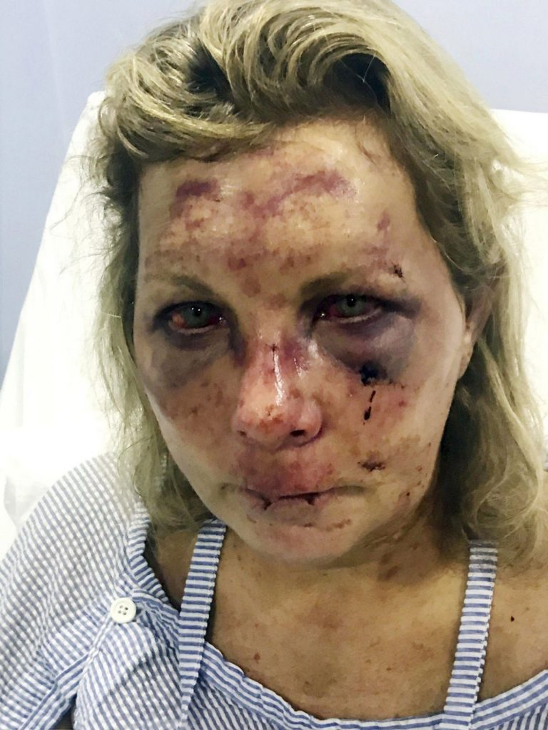Tammy Daley After the Alleged Beating at Majestic Resort