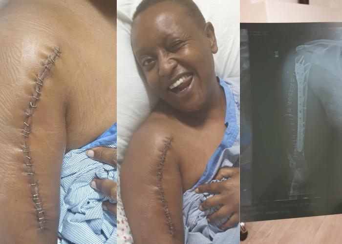 kenya woman injuries from hotel