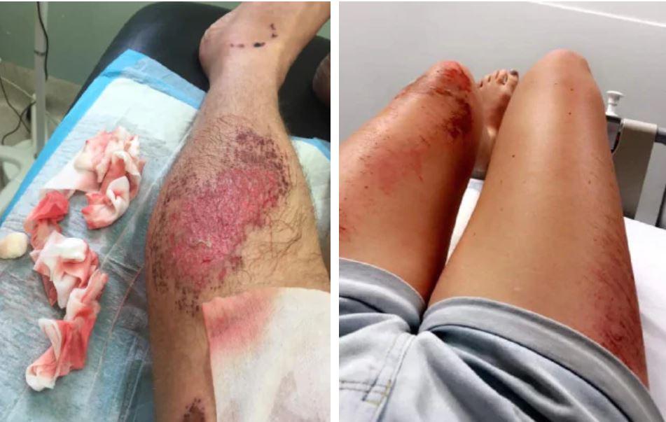 Tourists injured in bali