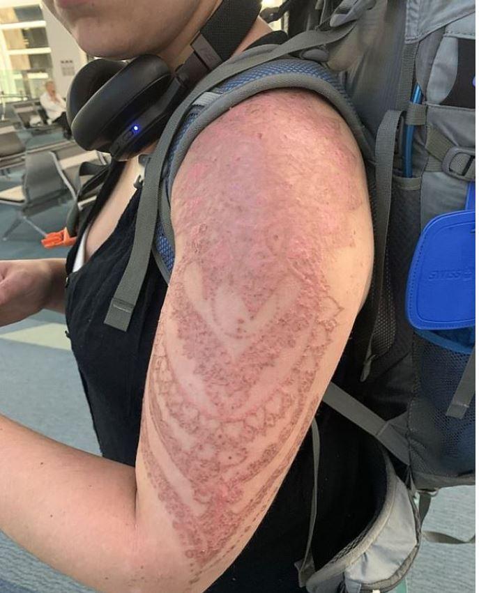 henna tattoo gone wrong