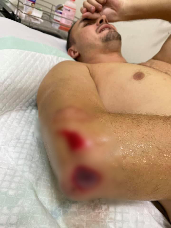 boyfriend injured robbery bali