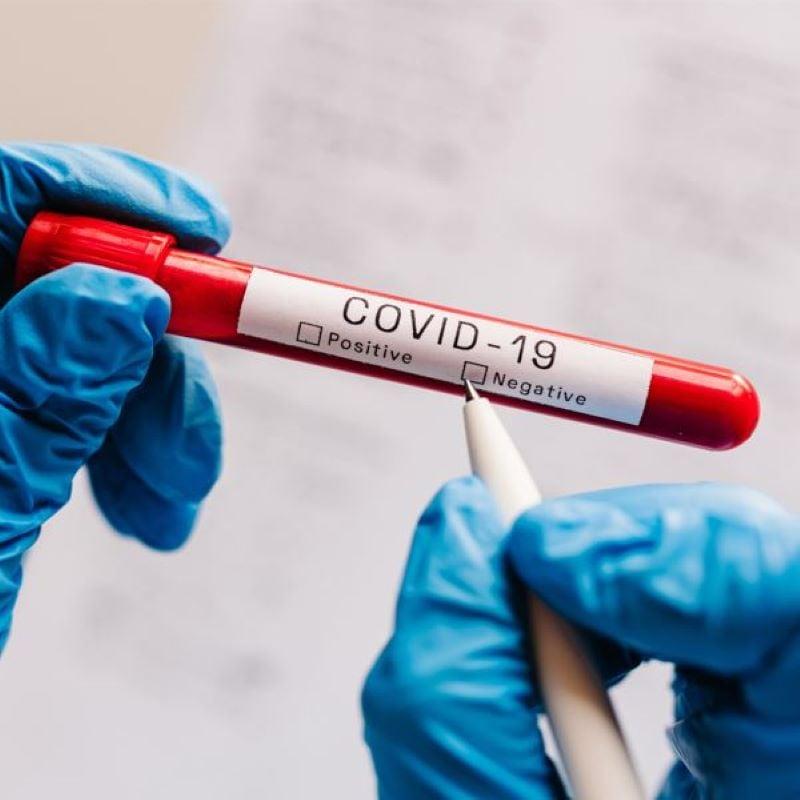 covid test negative